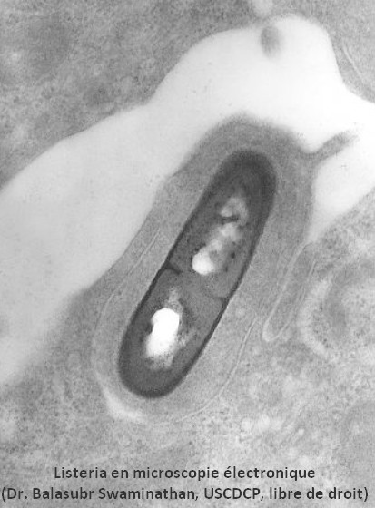 listeria monocytogene microscopie