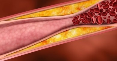 cholesterol atherosclerose artere bouche cardiovasculaire risque