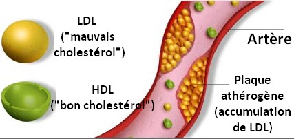Formation plaque atherogene atherosclerose LDL accumulation